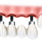 clinicas dentarias de implantes