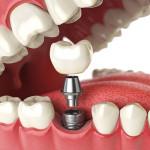 fazendo implante dentário