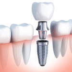 implante dentário quanto custa cada dente