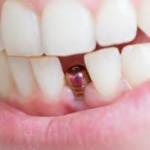 implante dentário quanto custa em média