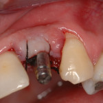 implante dentário valor