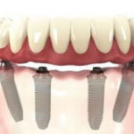 implante dente preço