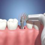 preço de implante de dente