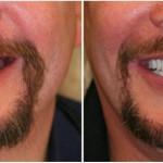 preço implante dente