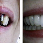 preço implante dente da frente