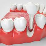 qual é o valor de um implante dentário