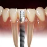 qual o preço de um implante de dente