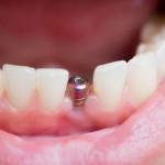quanto custa fazer implante dentário