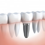valor de implante dentário