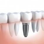 valor do implante dentário